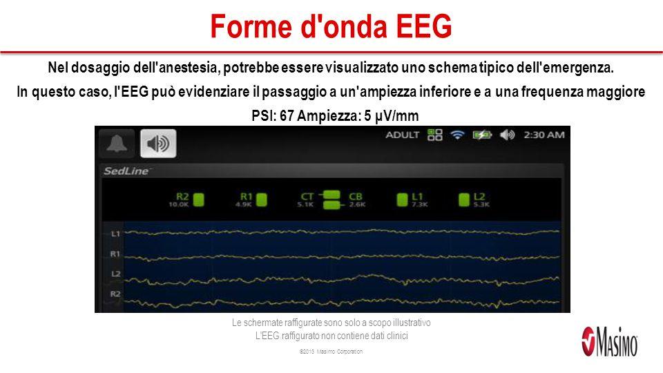 ©2013 Masimo Corporation Forme d onda EEG Nel dosaggio dell anestesia, potrebbe essere visualizzato uno schema tipico dell emergenza.