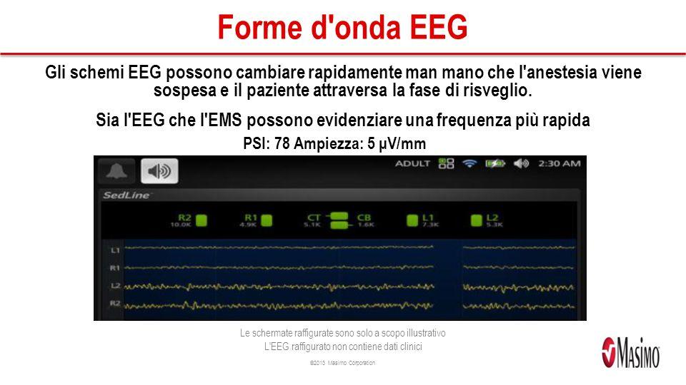 ©2013 Masimo Corporation Forme d onda EEG Gli schemi EEG possono cambiare rapidamente man mano che l anestesia viene sospesa e il paziente attraversa la fase di risveglio.