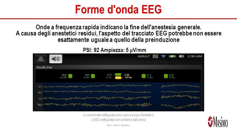 ©2013 Masimo Corporation Forme d onda EEG Onde a frequenza rapida indicano la fine dell anestesia generale.