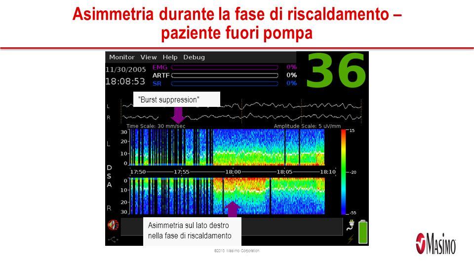 ©2013 Masimo Corporation Asimmetria durante la fase di riscaldamento – paziente fuori pompa Burst suppression Asimmetria sul lato destro nella fase di riscaldamento
