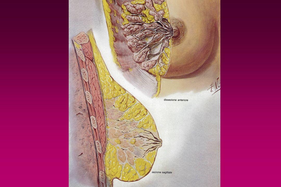 Patologia mammaria distribuzione topografica 1) Insorgenza dai grandi dotti - Ectasia duttale - Adenoma del capezzolo - Papilloma intraduttale - Malattia di Paget - Carcinoma intracistico (raro) Steatonecrosi Steatonecrosi - Ectasia duttale - Adenoma del capezzolo - Papilloma intraduttale - Malattia di Paget - Carcinoma intracistico (raro) Steatonecrosi Steatonecrosi