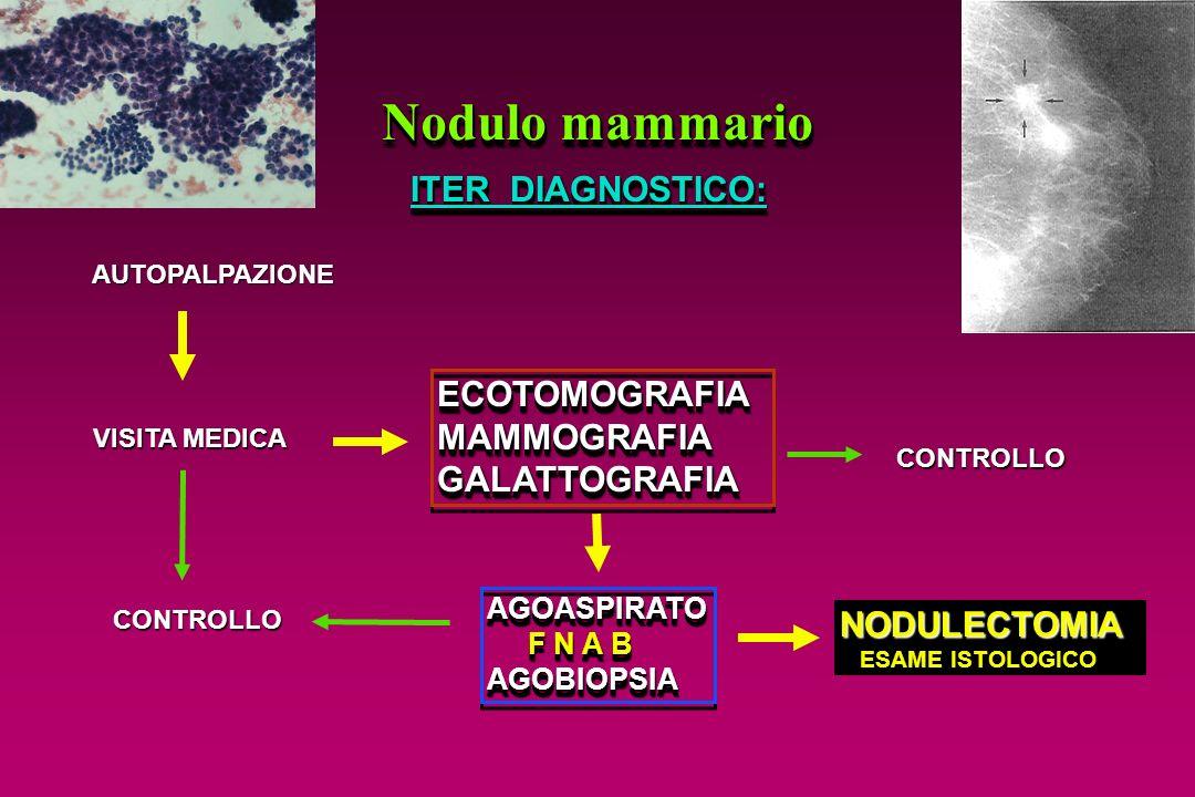 Nodulo mammario ITER DIAGNOSTICO: AUTOPALPAZIONE VISITA MEDICA ECOTOMOGRAFIAMAMMOGRAFIAGALATTOGRAFIAECOTOMOGRAFIAMAMMOGRAFIAGALATTOGRAFIA CONTROLLO AG