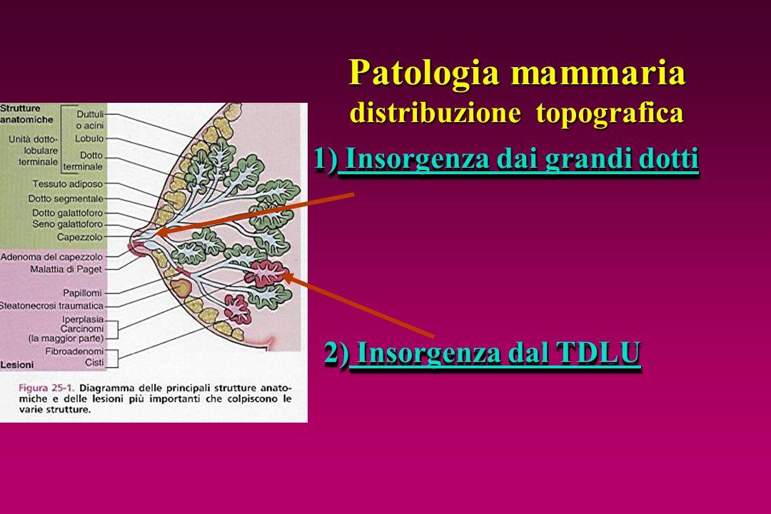 Patologia mammaria distribuzione topografica 1) Insorgenza dai grandi dotti 2) Insorgenza dal TDLU