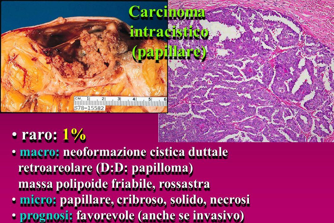 raro: 1% raro: 1% macro: neoformazione cistica duttale macro: neoformazione cistica duttale retroareolare (D:D: papilloma) retroareolare (D:D: papillo