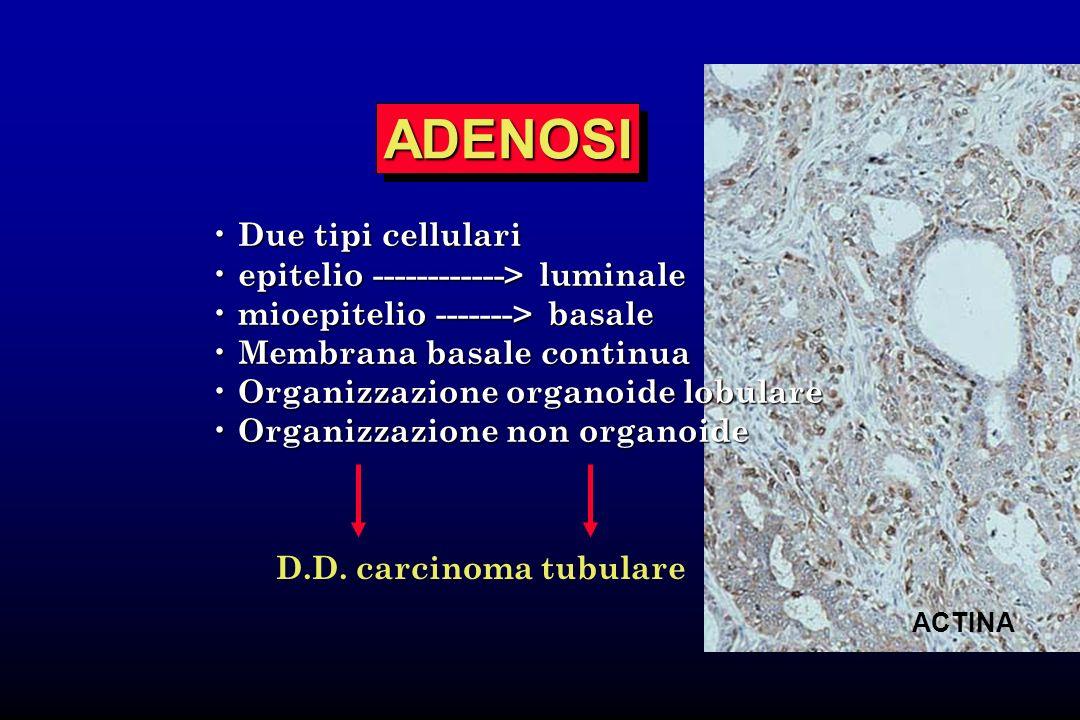 D.D. carcinoma tubulare ADENOSIADENOSI ACTINA Due tipi cellulari Due tipi cellulari epitelio ------------> luminale epitelio ------------> luminale mi