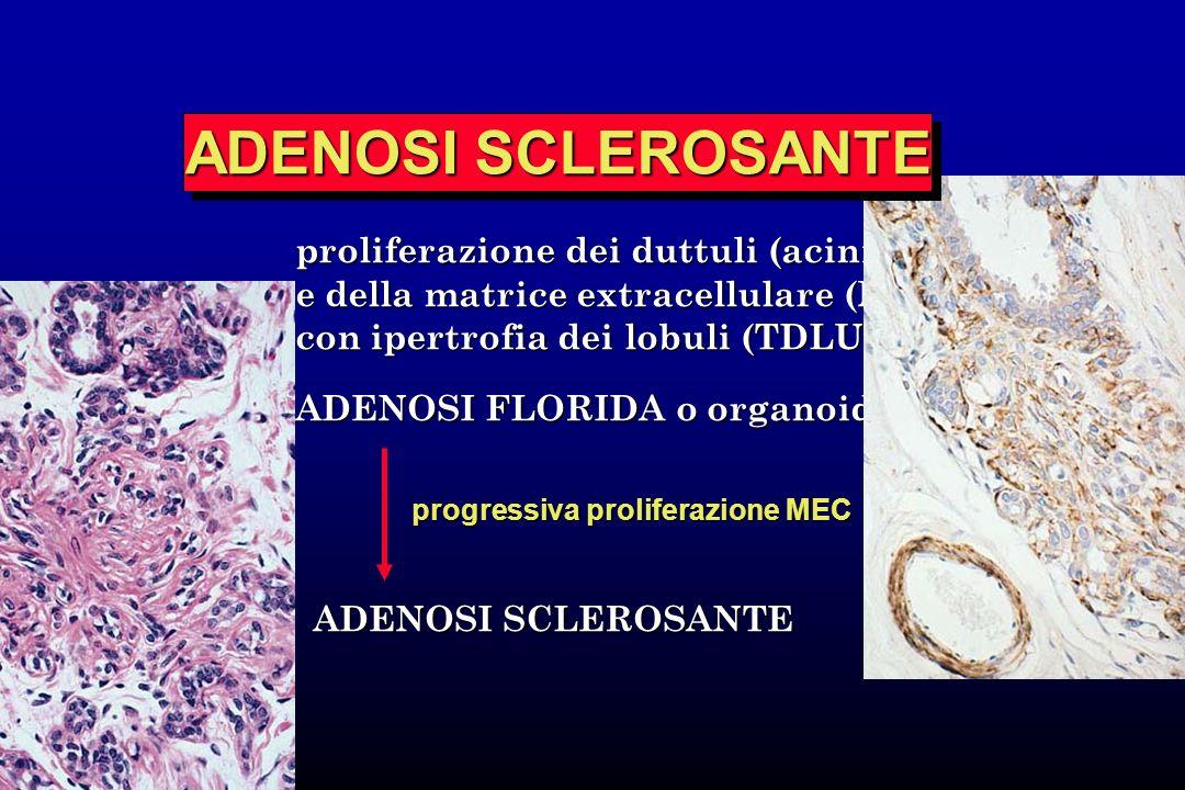 proliferazione dei duttuli (acini) e della matrice extracellulare (MEC) con ipertrofia dei lobuli (TDLU) ADENOSI FLORIDA o organoide ADENOSI SCLEROSAN