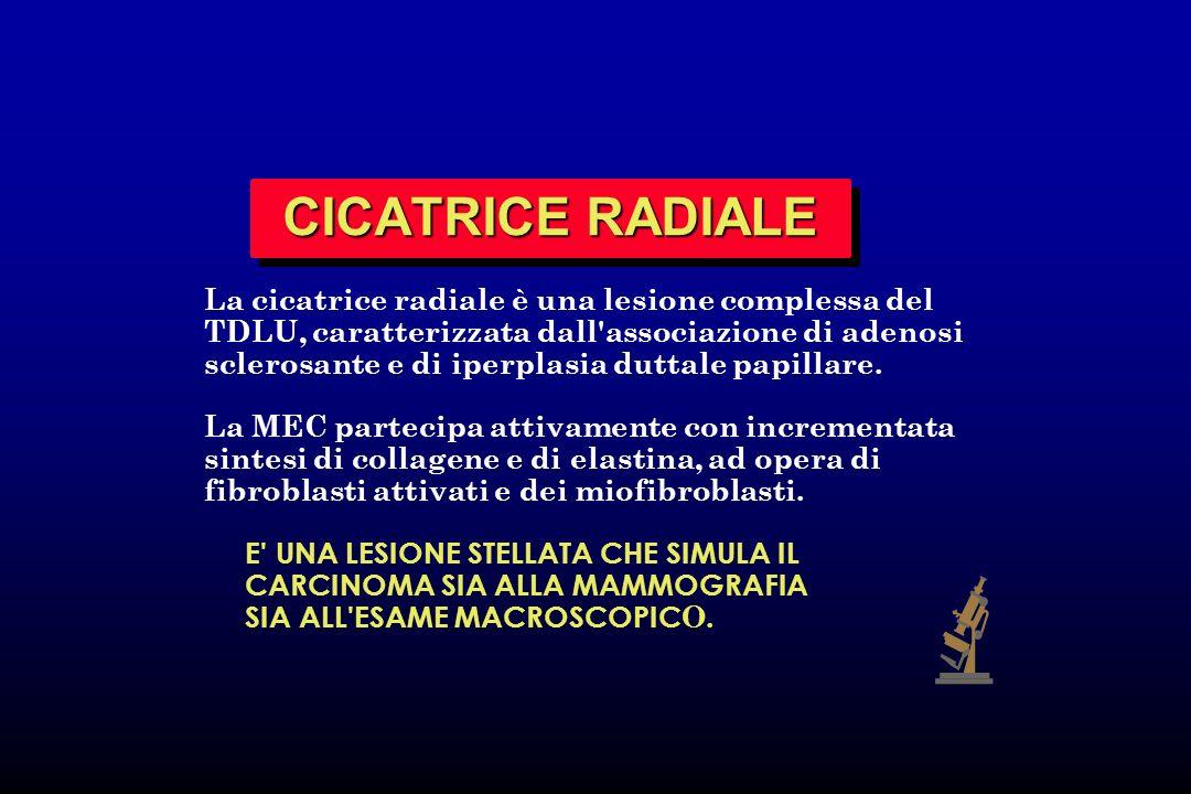 CICATRICE RADIALE La cicatrice radiale è una lesione complessa del TDLU, caratterizzata dall'associazione di adenosi sclerosante e di iperplasia dutta