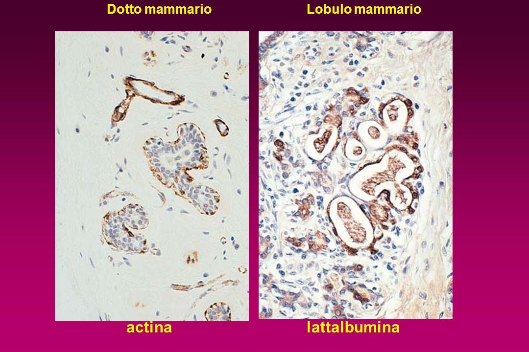 Mammella - influenze ormonali EstrogeniEstrogeni ProgesteroneProgesterone proliferazione TDLU Ormoni tiroidei ProlattinaProlattina Ormone della crescita differenziazione TDLU lattogenesi, proliferazione mammogenesimammogenesi incremento risposta Prolat.