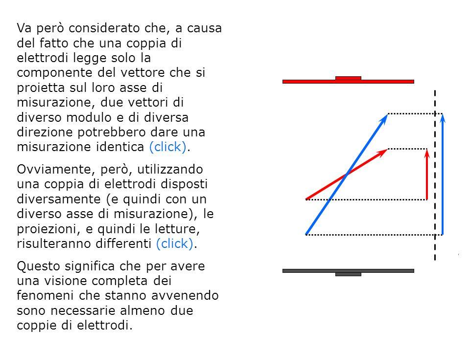 Va però considerato che, a causa del fatto che una coppia di elettrodi legge solo la componente del vettore che si proietta sul loro asse di misurazio