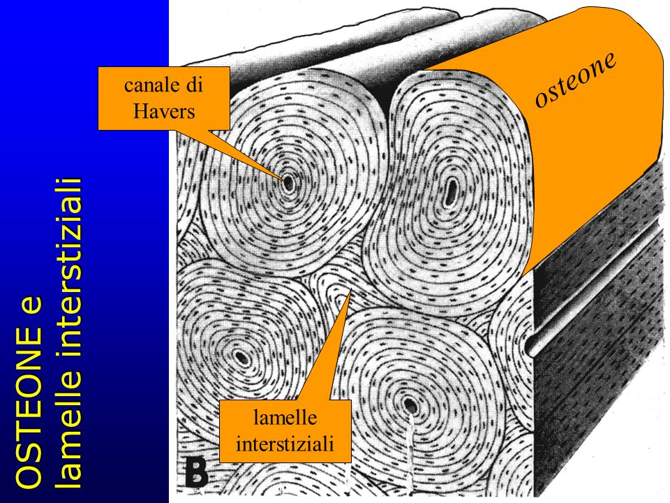 OSTEONE e lamelle interstiziali lamelle interstiziali canale di Havers osteone