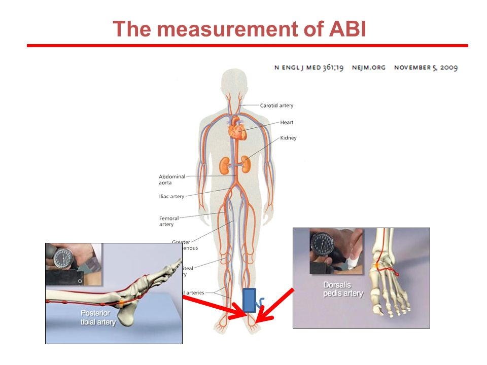 The measurement of ABI