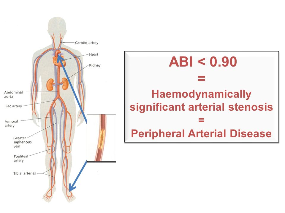 ABI < 0.90 = Haemodynamically significant arterial stenosis = Peripheral Arterial Disease ABI < 0.90 = Haemodynamically significant arterial stenosis = Peripheral Arterial Disease