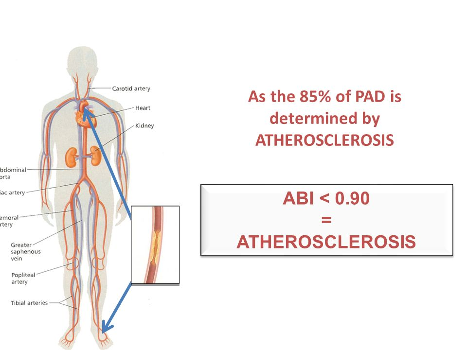 ABI < 0.90 = ATHEROSCLEROSIS ABI < 0.90 = ATHEROSCLEROSIS As the 85% of PAD is determined by ATHEROSCLEROSIS