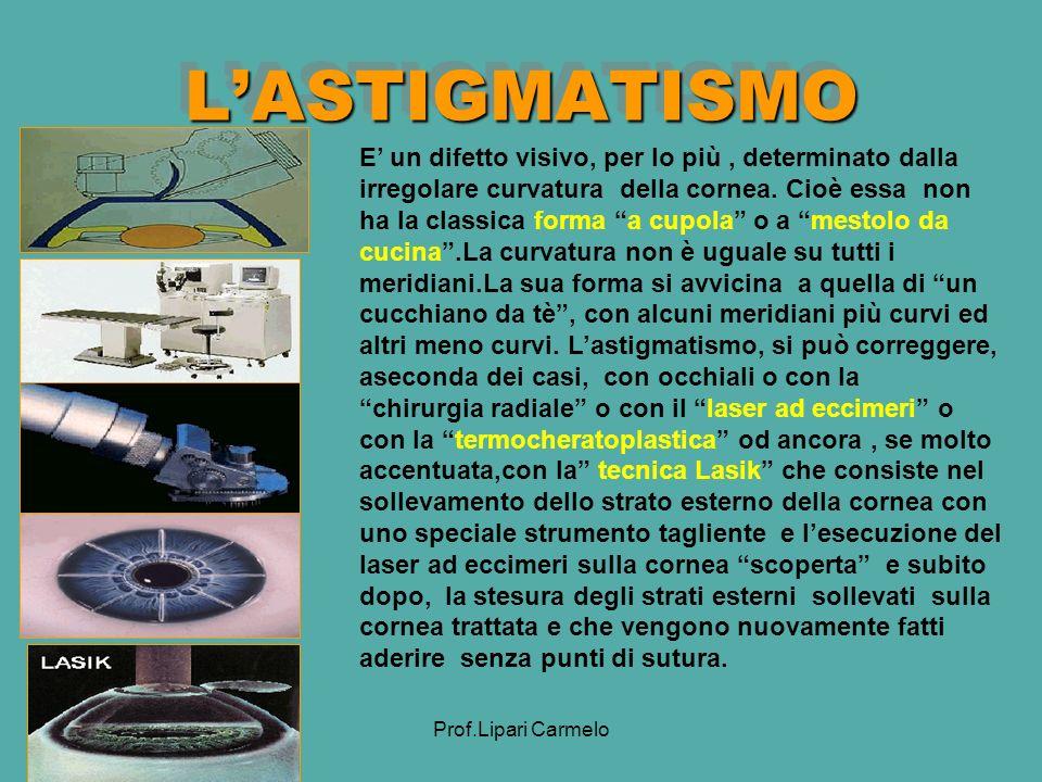 Prof.Lipari Carmelo LASTIGMATISMOLASTIGMATISMO E un difetto visivo, per lo più, determinato dalla irregolare curvatura della cornea.