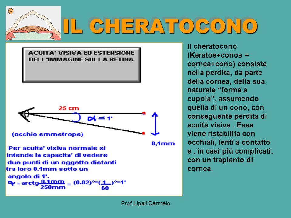 Prof.Lipari Carmelo IL CHERATOCONO Il cheratocono (Keratos+conos = cornea+cono) consiste nella perdita, da parte della cornea, della sua naturale forma a cupola, assumendo quella di un cono, con conseguente perdita di acuità visiva.