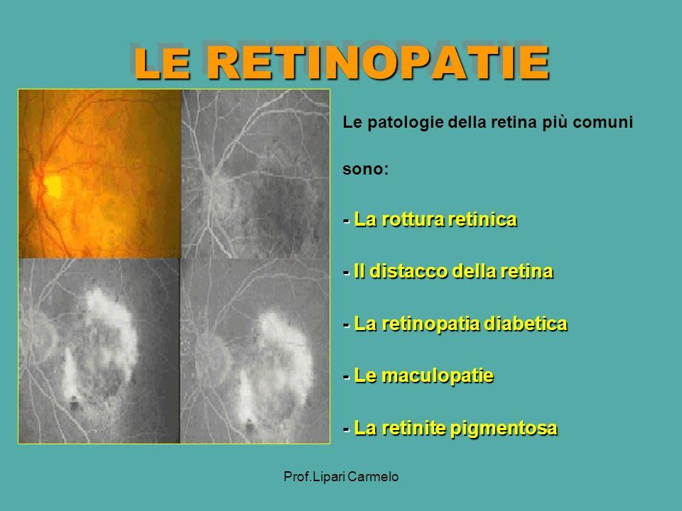 Prof.Lipari Carmelo LE RETINOPATIE - La rottura retinica - Il distacco della retina - La retinopatia diabetica - Le maculopatie - La retinite pigmentosa Le patologie della retina più comuni sono: - La rottura retinica - Il distacco della retina - La retinopatia diabetica - Le maculopatie - La retinite pigmentosa