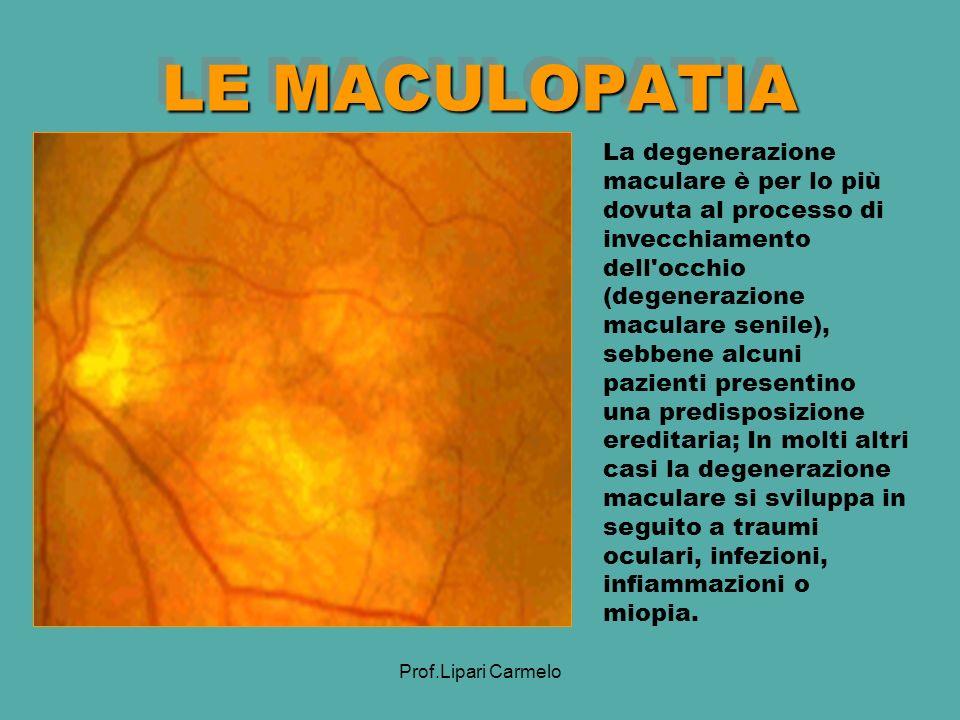 Prof.Lipari Carmelo LE MACULOPATIA La degenerazione maculare è per lo più dovuta al processo di invecchiamento dell occhio (degenerazione maculare senile), sebbene alcuni pazienti presentino una predisposizione ereditaria; In molti altri casi la degenerazione maculare si sviluppa in seguito a traumi oculari, infezioni, infiammazioni o miopia.