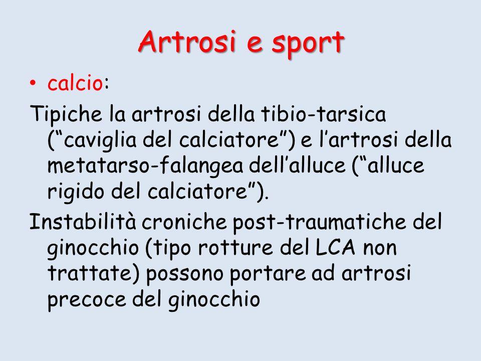 Artrosi e sport calcio: Tipiche la artrosi della tibio-tarsica (caviglia del calciatore) e lartrosi della metatarso-falangea dellalluce (alluce rigido del calciatore).