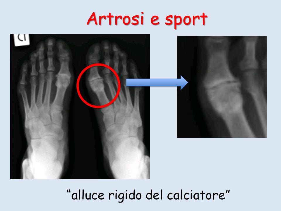 Artrosi e sport alluce rigido del calciatore