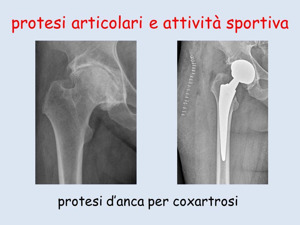 protesi articolari e attività sportiva protesi danca per coxartrosi