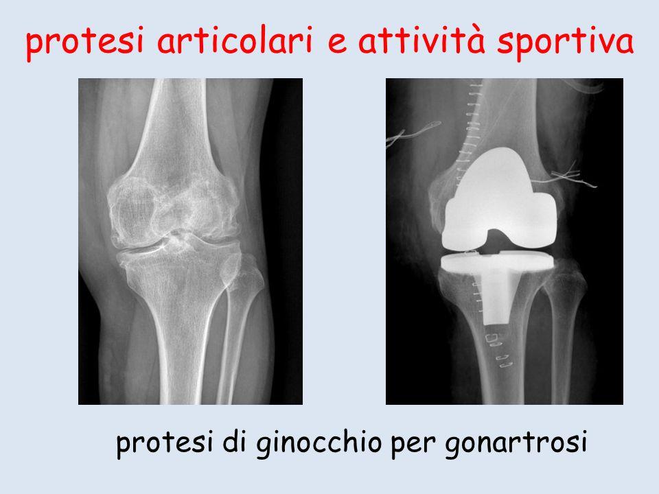 protesi articolari e attività sportiva protesi di ginocchio per gonartrosi