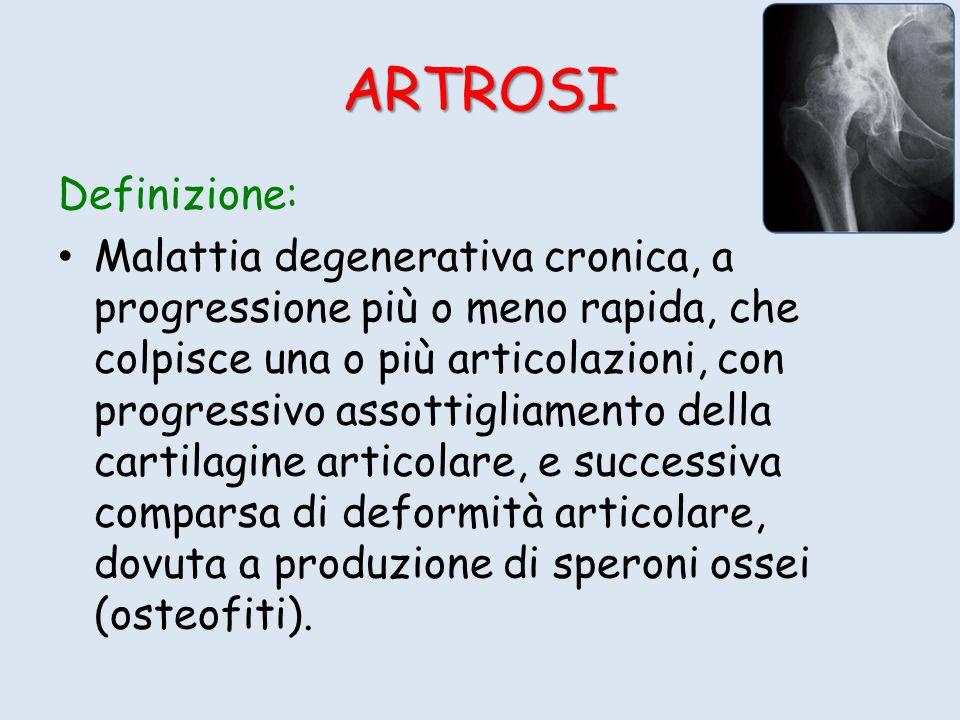 ARTROSI Definizione: Malattia degenerativa cronica, a progressione più o meno rapida, che colpisce una o più articolazioni, con progressivo assottigli