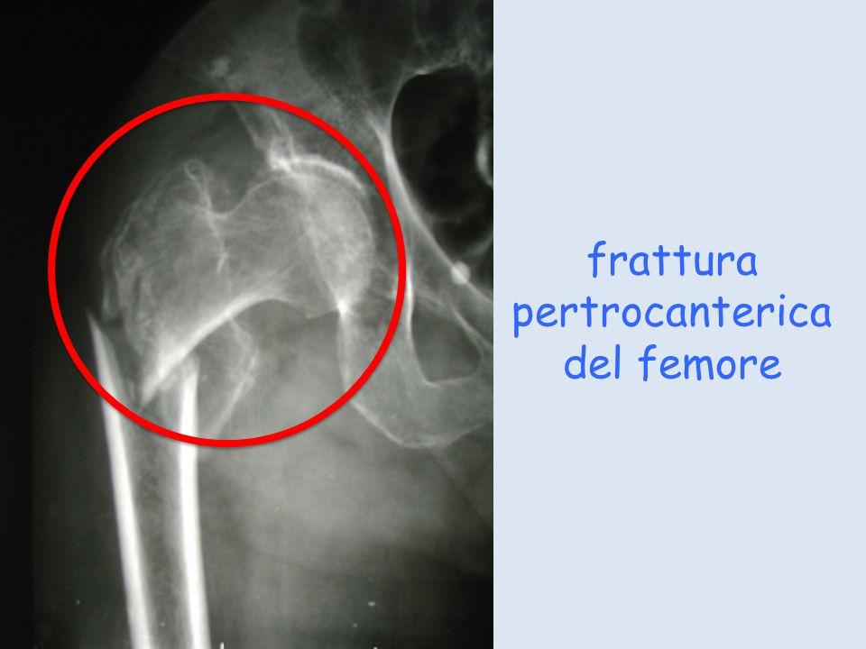frattura pertrocanterica del femore