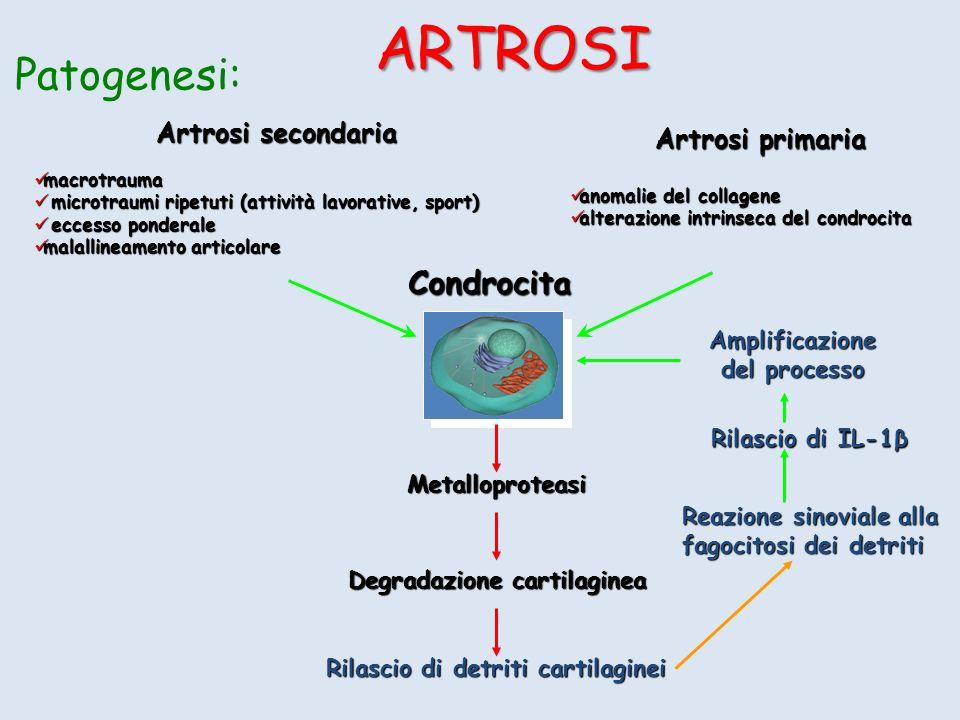 Artrosi secondaria macrotrauma macrotrauma microtraumi ripetuti (attività lavorative, sport) microtraumi ripetuti (attività lavorative, sport) eccesso