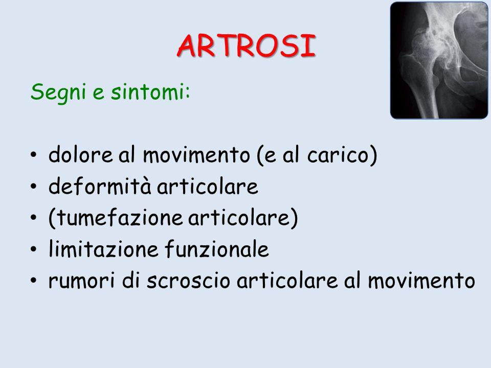 ARTROSI Segni e sintomi: dolore al movimento (e al carico) deformità articolare (tumefazione articolare) limitazione funzionale rumori di scroscio articolare al movimento