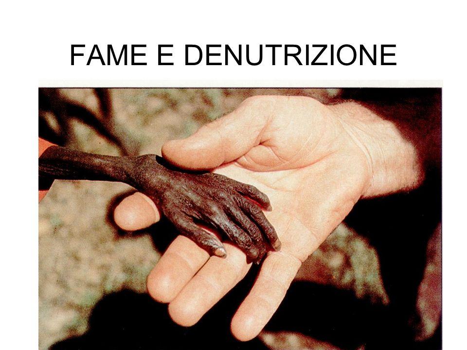 FAME E DENUTRIZIONE