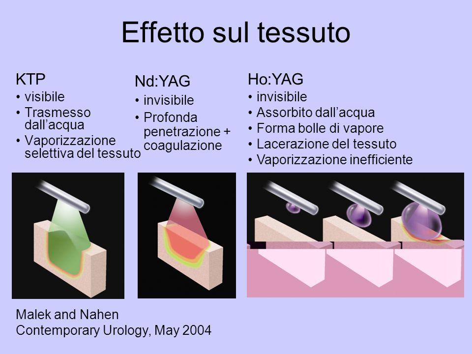 Effetto sul tessuto KTP visibile Trasmesso dallacqua Vaporizzazione selettiva del tessuto Nd:YAG invisibile Profonda penetrazione + coagulazione Ho:YAG invisibile Assorbito dallacqua Forma bolle di vapore Lacerazione del tessuto Vaporizzazione inefficiente Malek and Nahen Contemporary Urology, May 2004
