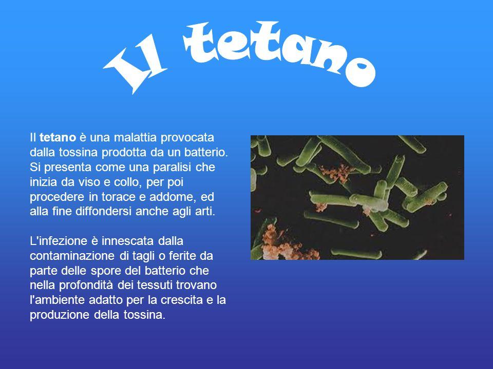 Il tetano è una malattia provocata dalla tossina prodotta da un batterio. Si presenta come una paralisi che inizia da viso e collo, per poi procedere