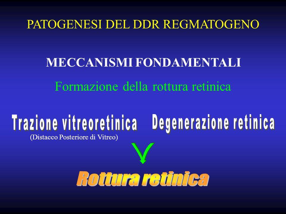PATOGENESI DEL DDR REGMATOGENO MECCANISMI FONDAMENTALI (Distacco Posteriore di Vitreo) Formazione della rottura retinica