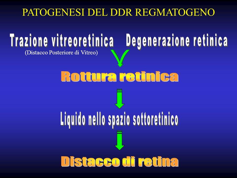 PATOGENESI DEL DDR REGMATOGENO (Distacco Posteriore di Vitreo)