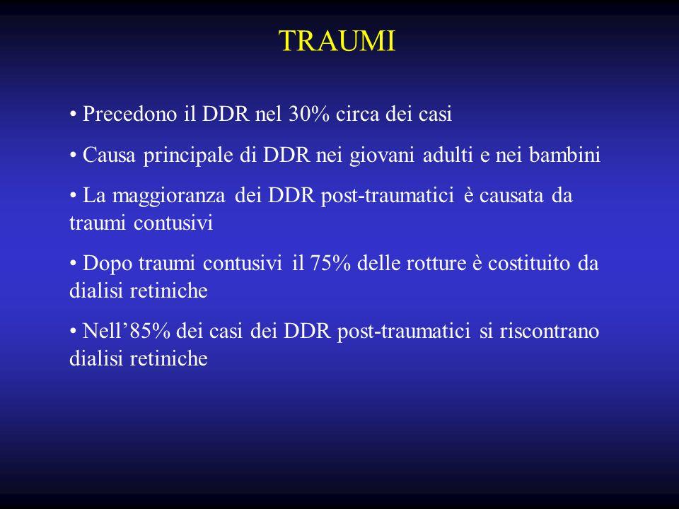 TRAUMI Precedono il DDR nel 30% circa dei casi Causa principale di DDR nei giovani adulti e nei bambini La maggioranza dei DDR post-traumatici è causata da traumi contusivi Dopo traumi contusivi il 75% delle rotture è costituito da dialisi retiniche Nell85% dei casi dei DDR post-traumatici si riscontrano dialisi retiniche
