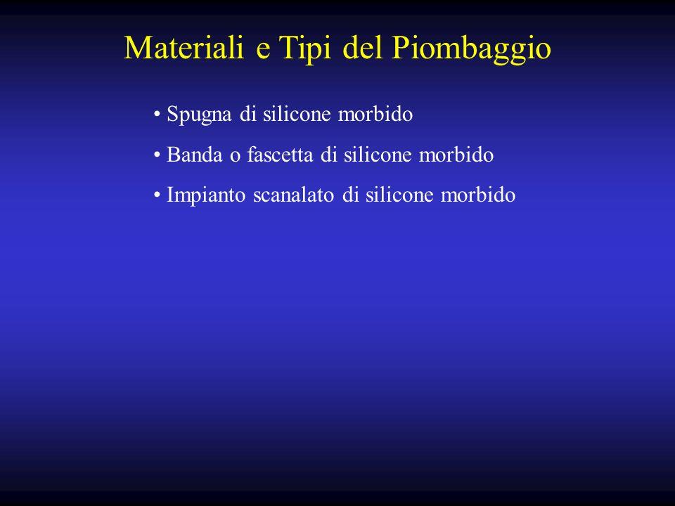Materiali e Tipi del Piombaggio Spugna di silicone morbido Banda o fascetta di silicone morbido Impianto scanalato di silicone morbido
