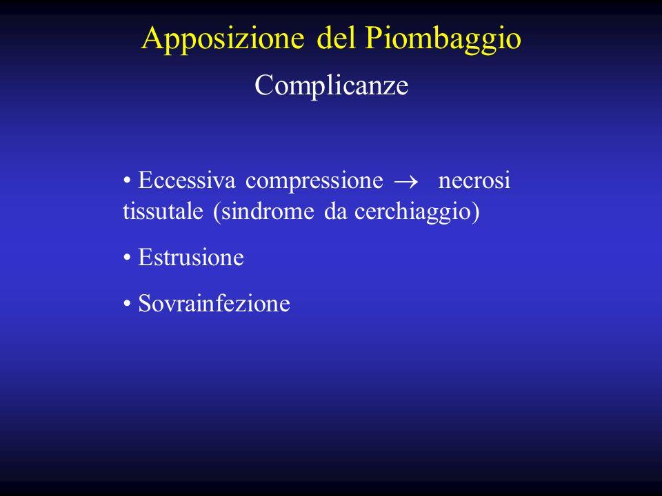 Apposizione del Piombaggio Complicanze Eccessiva compressione necrosi tissutale (sindrome da cerchiaggio) Estrusione Sovrainfezione