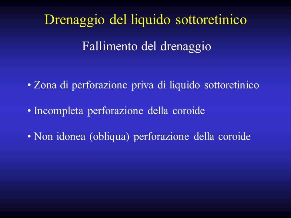 Drenaggio del liquido sottoretinico Fallimento del drenaggio Zona di perforazione priva di liquido sottoretinico Incompleta perforazione della coroide Non idonea (obliqua) perforazione della coroide
