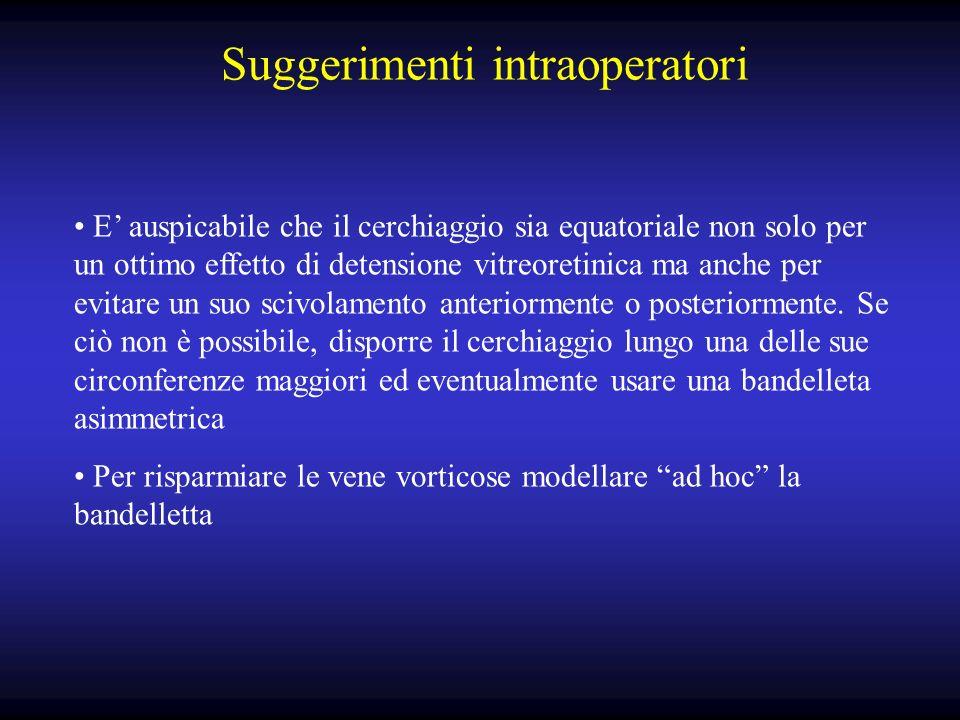 Suggerimenti intraoperatori E auspicabile che il cerchiaggio sia equatoriale non solo per un ottimo effetto di detensione vitreoretinica ma anche per evitare un suo scivolamento anteriormente o posteriormente.