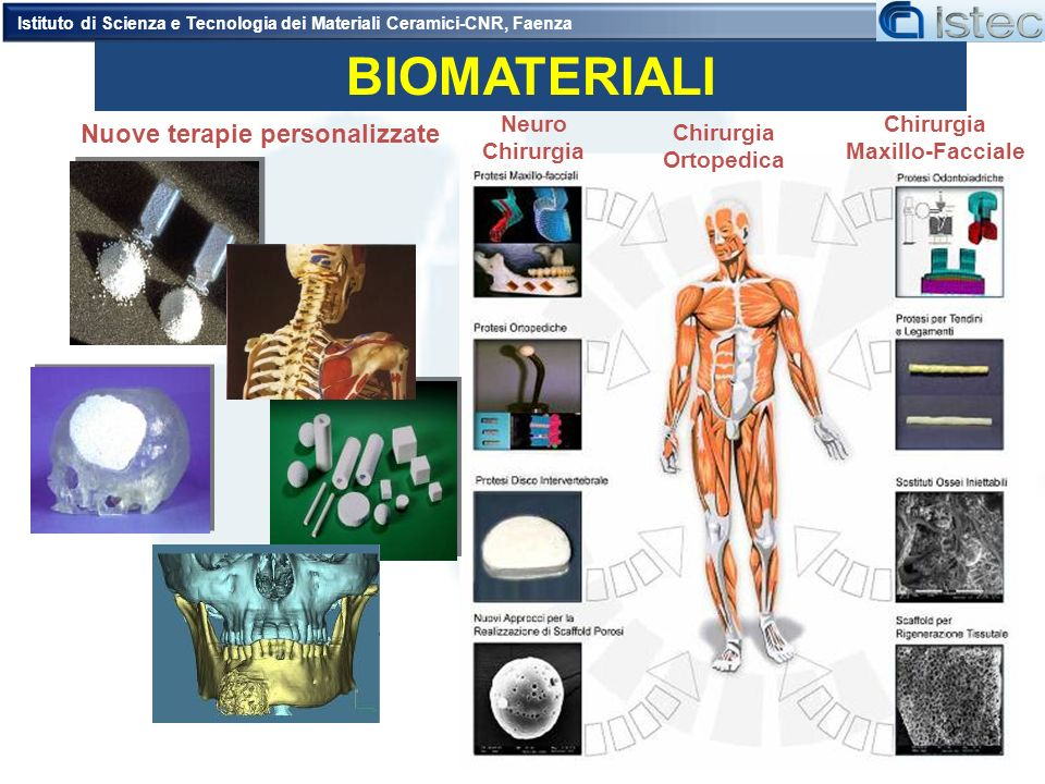 BIOMATERIALI Chirurgia Ortopedica Neuro Chirurgia Maxillo-Facciale Nuove terapie personalizzate Istituto di Scienza e Tecnologia dei Materiali Ceramic