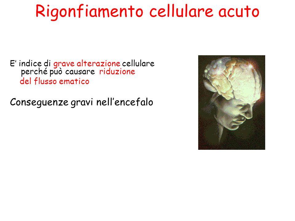 Rigonfiamento cellulare acuto E indice di grave alterazione cellulare perché può causare riduzione del flusso ematico Conseguenze gravi nellencefalo