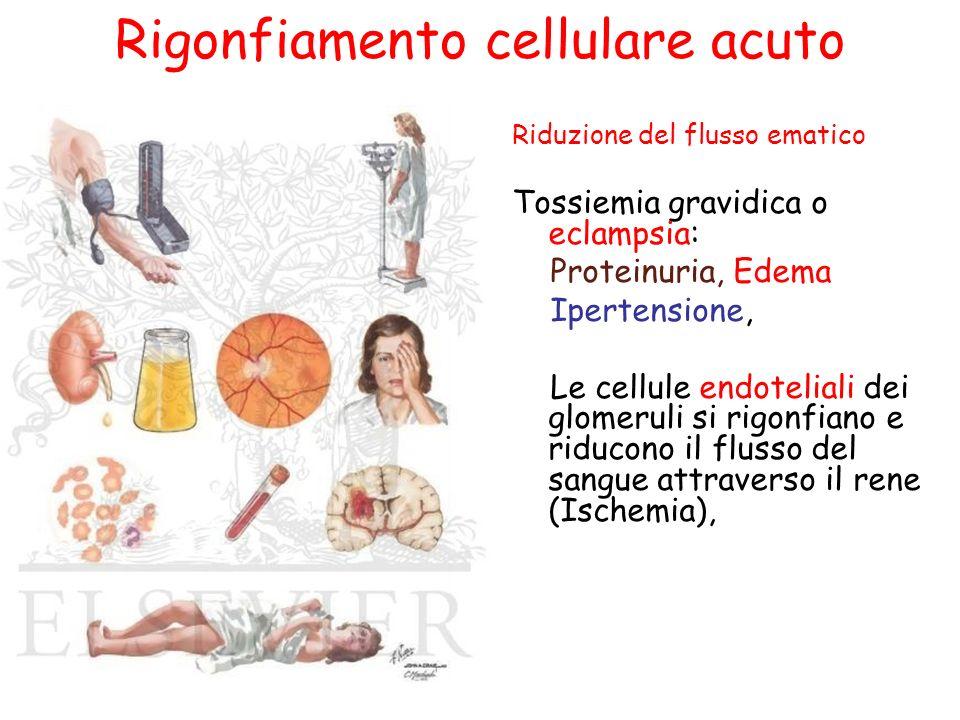 Rigonfiamento cellulare acuto Riduzione del flusso ematico Tossiemia gravidica o eclampsia: Proteinuria, Edema Ipertensione, Le cellule endoteliali de