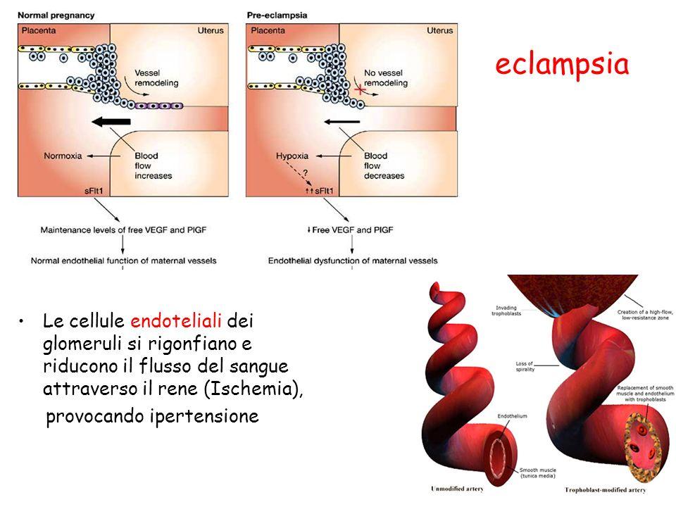 eclampsia Le cellule endoteliali dei glomeruli si rigonfiano e riducono il flusso del sangue attraverso il rene (Ischemia), provocando ipertensione