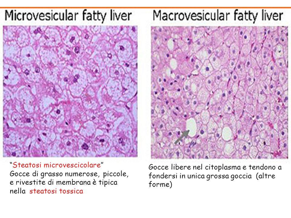 Steatosi microvescicolare Gocce di grasso numerose, piccole, e rivestite di membrana è tipica nella steatosi tossica Gocce libere nel citoplasma e ten