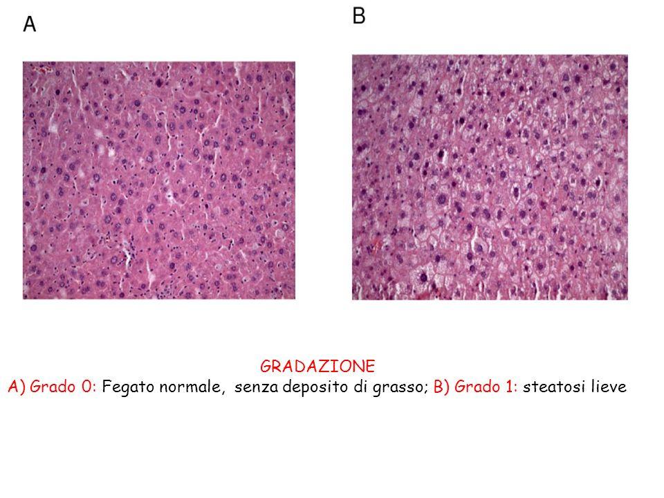 GRADAZIONE A) Grado 0: Fegato normale, senza deposito di grasso; B) Grado 1: steatosi lieve