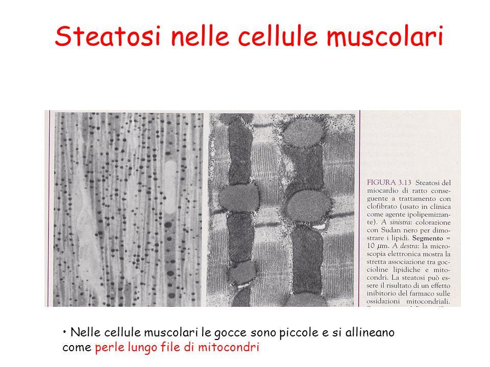 Steatosi nelle cellule muscolari Nelle cellule muscolari le gocce sono piccole e si allineano come perle lungo file di mitocondri