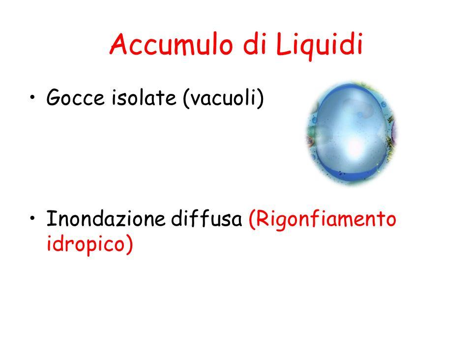 Accumulo di liquidi Vacuoli si possono formare per Pinocitosi Fagocitosi Erniazione Fisiologico: Macrofagi attivati Patologico: Nefrosi osmotica: Infusione di soluzioni Ipertoniche di saccarosio Vacuolizzazione massiva dei tubuli contorti del rene