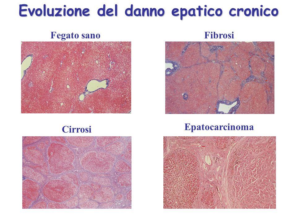 Fegato sanoFibrosi Cirrosi Epatocarcinoma Evoluzione del danno epatico cronico