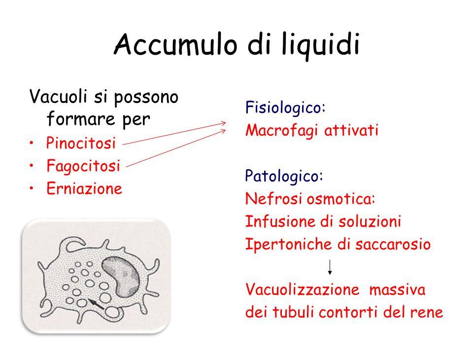 Accumulo di liquidi Vacuoli si possono formare per Pinocitosi Fagocitosi Erniazione Fisiologico: Macrofagi attivati Patologico: Nefrosi osmotica: Infu