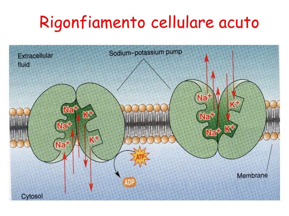 Caratteristiche macroscopiche della steatosi Pallore e sfumature giallastre dellorgano Aumento della massa dellorgano Riduzione della densità (TAC-Risonanza magnetica) Al taglio autoptico lorgano e morbido ed il bisturi rimane unto Steatosi focale in caso di anossia (le variazioni locali di rifornimento di ossigeno si riflettono sulla deposizione di lipidi) es.: anemia grave: gli epatociti steatosici si concentrano nella zona centrolobulare dove ce meno ossigeno steatosi intorno agli infarti miocardici